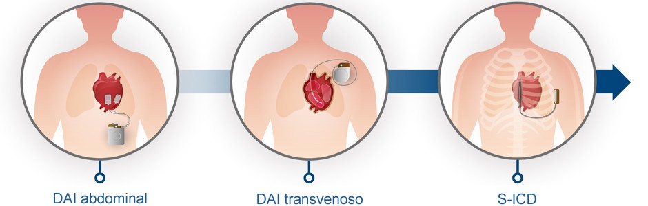 Evolución de los dispositivos DAI hasta el S-ICD