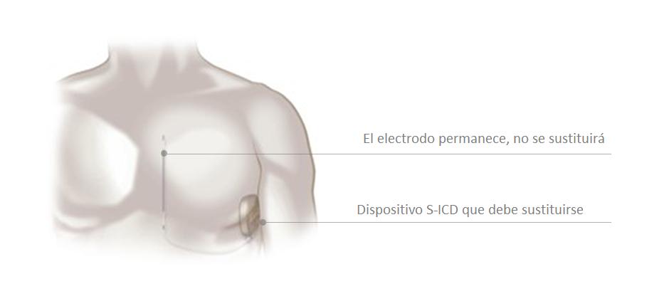 debe sustituirse el dispositivo S-ICD